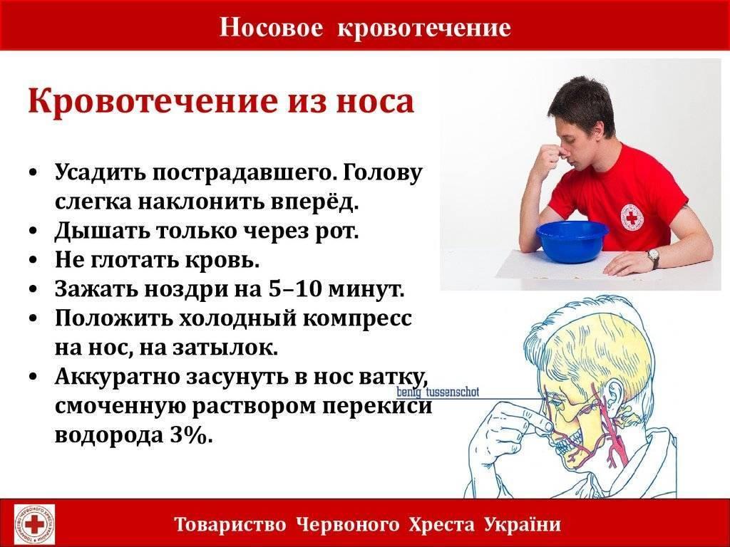 Носовые кровотечения у детей: причины и первая помощь