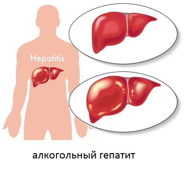 Реактивный гепатит что это такое у детей