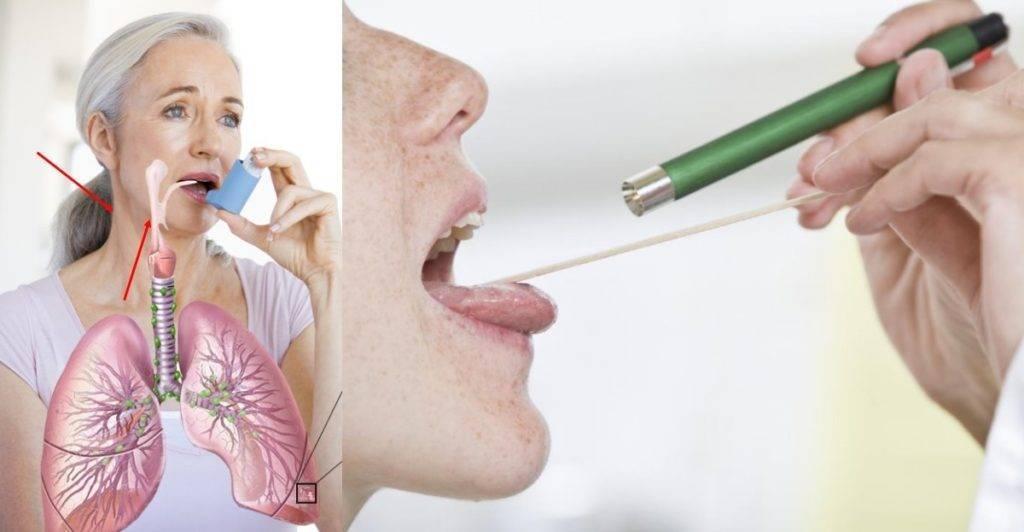 сильная сухость в горле