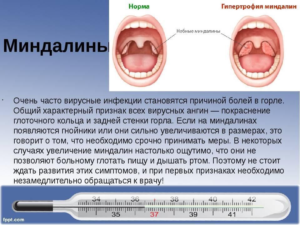 Вирусная ангина у взрослых и детей