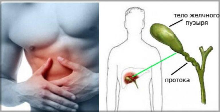 питание при деформации желчного пузыря