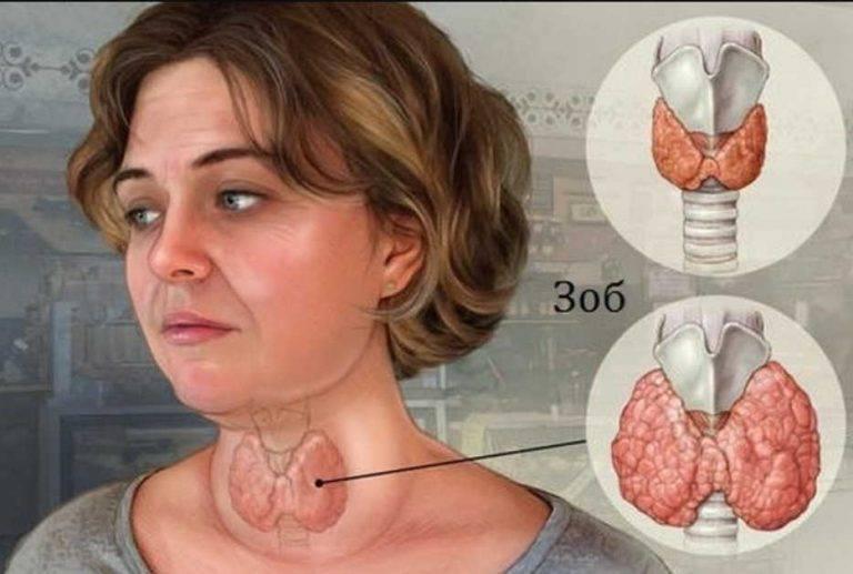 узловатый зоб щитовидной железы