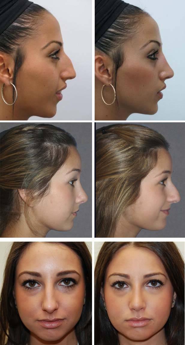 Как уменьшить нос без операции в домашних условиях: лучшие техники