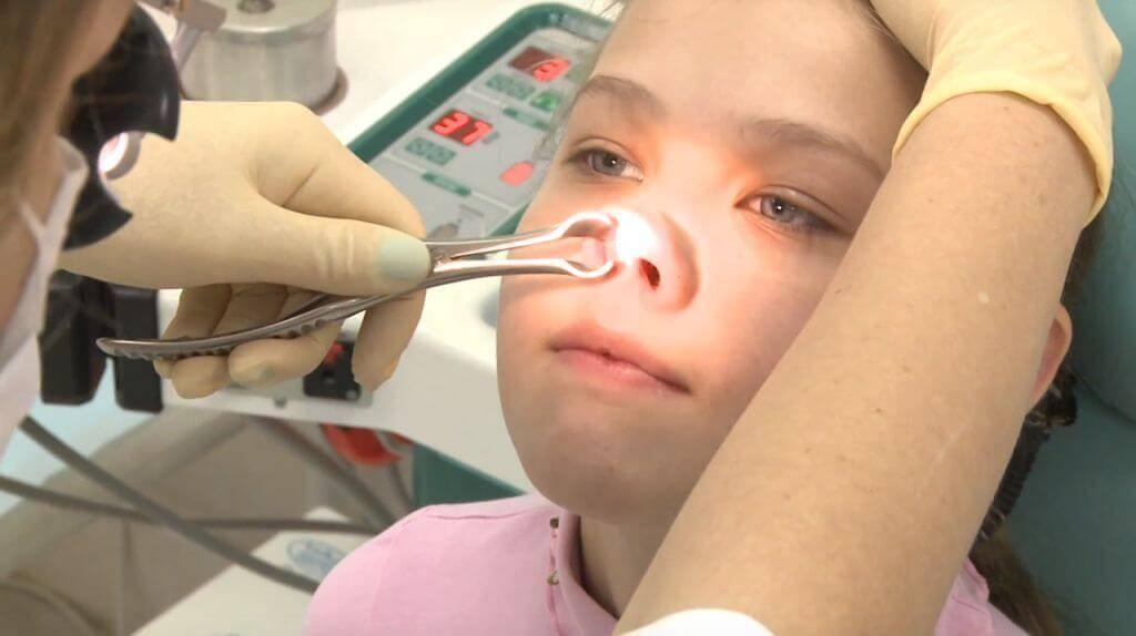 Лечение аденоидов у детей без операции, советы комаровского