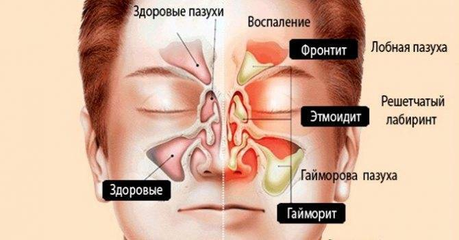 Носовое кровотечение – сигнал серьезного заболевания