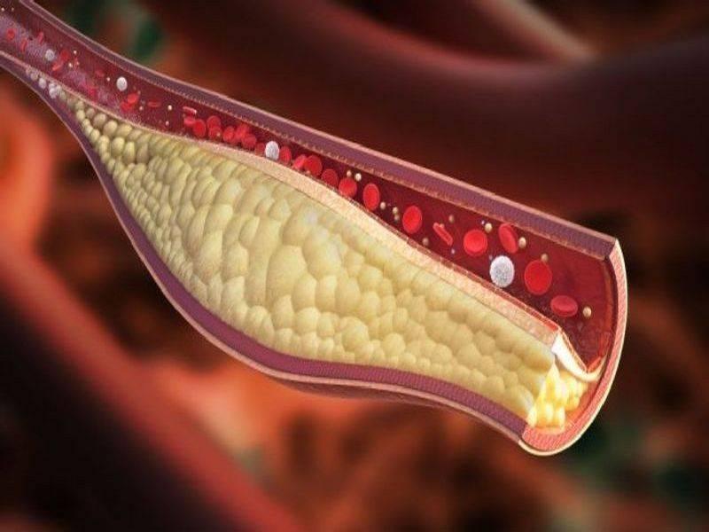 причина холестериновых бляшек
