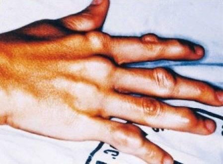 Гиперхолестеринемия: симптомы и методы лечения