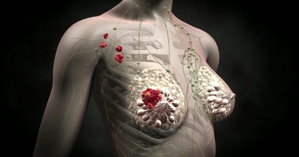 опухоль груди у мужчин