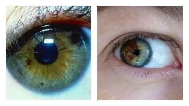 черные точки в глазах что это