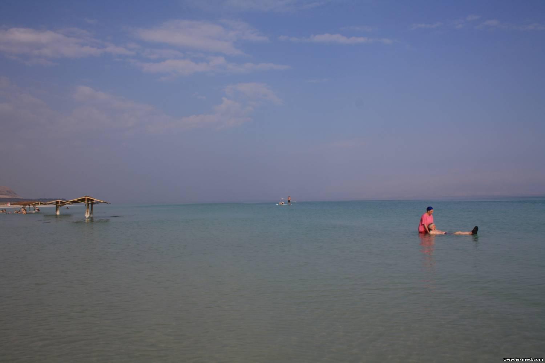 Где лучше всего лечить псориаз: на море, на курорте, в санатории