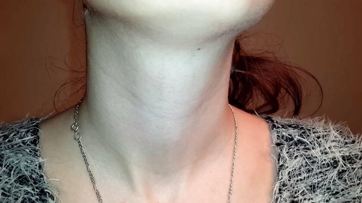 Что такое рак щитовидной железы, и какие симптомы присутствуют при раке щитовидки только у женщин?