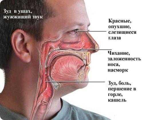 постоянно чешется нос и чихаю