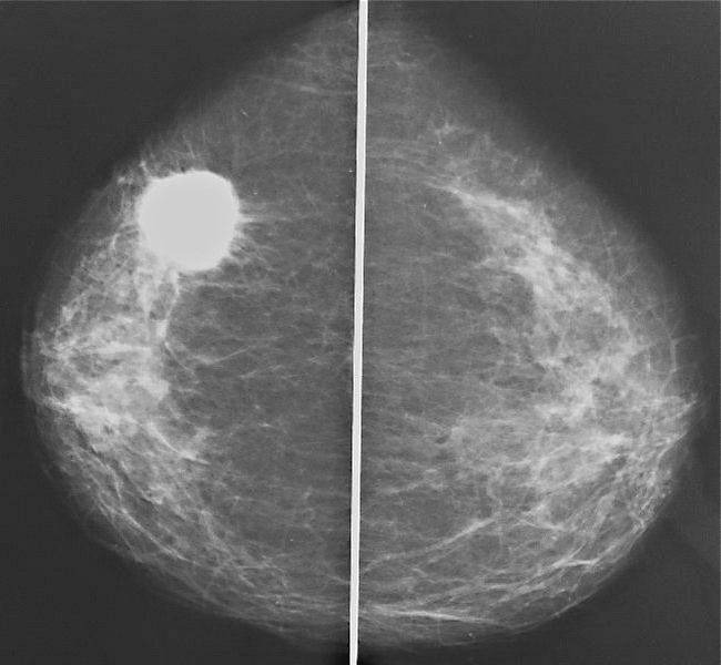 маммография заключение