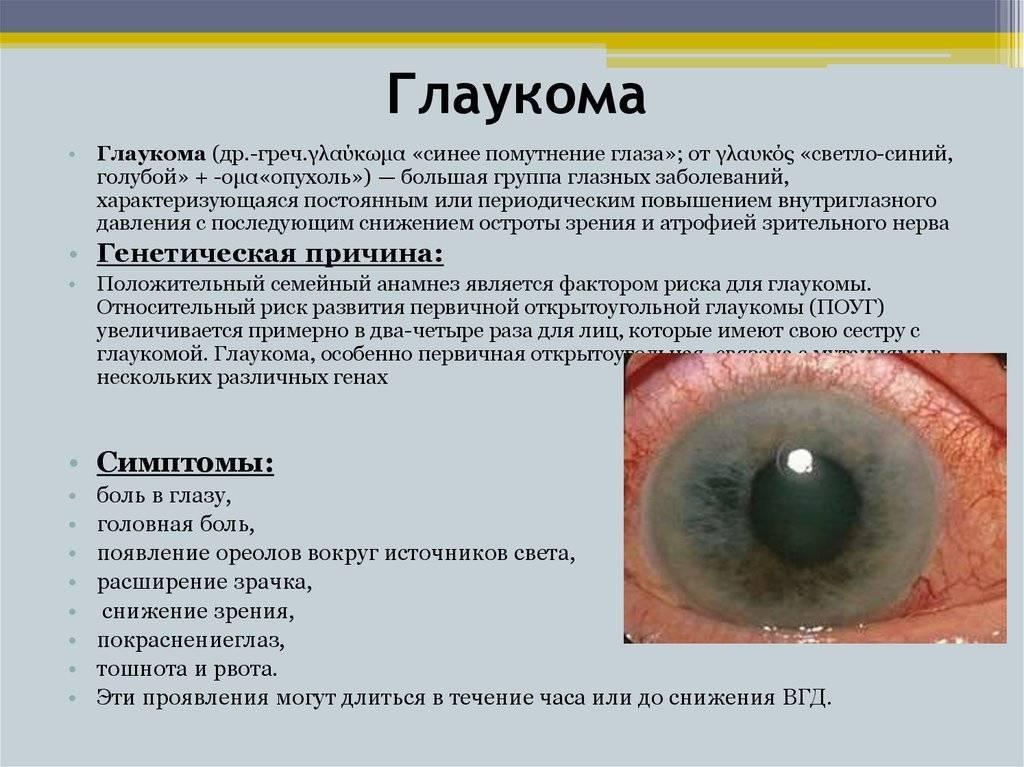 Можно ли вылечить глаукому без операции?