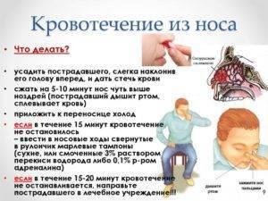причины кровотечения из носа у подростков