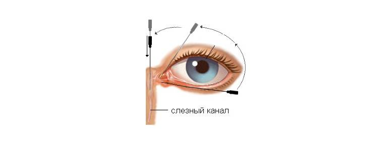Непроходимость слезных каналов без гноя - запись пользователя мария (terra_2008) в сообществе здоровье новорожденных в категории болезни глаз - babyblog.ru