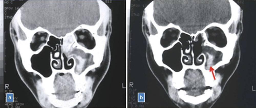 Сделать мрт пазух носа в москве: цены, отзывы, фото. магнитно-резонансная томография носовых пазух дешево.