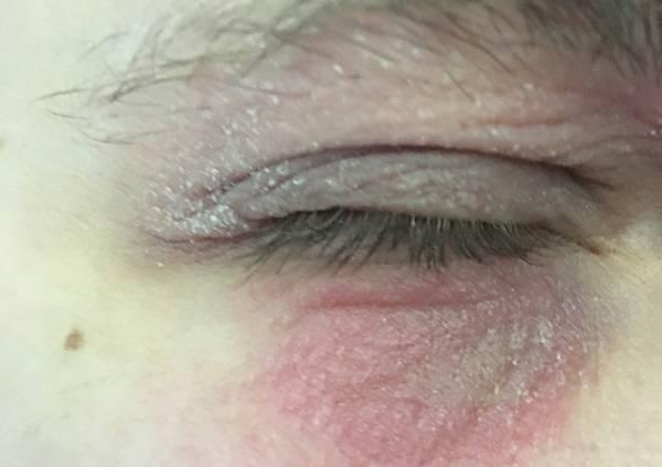 Пеленочный дерматит - лечение, мази и кремы - нужны ли. кандидозный пеленочный дерматит