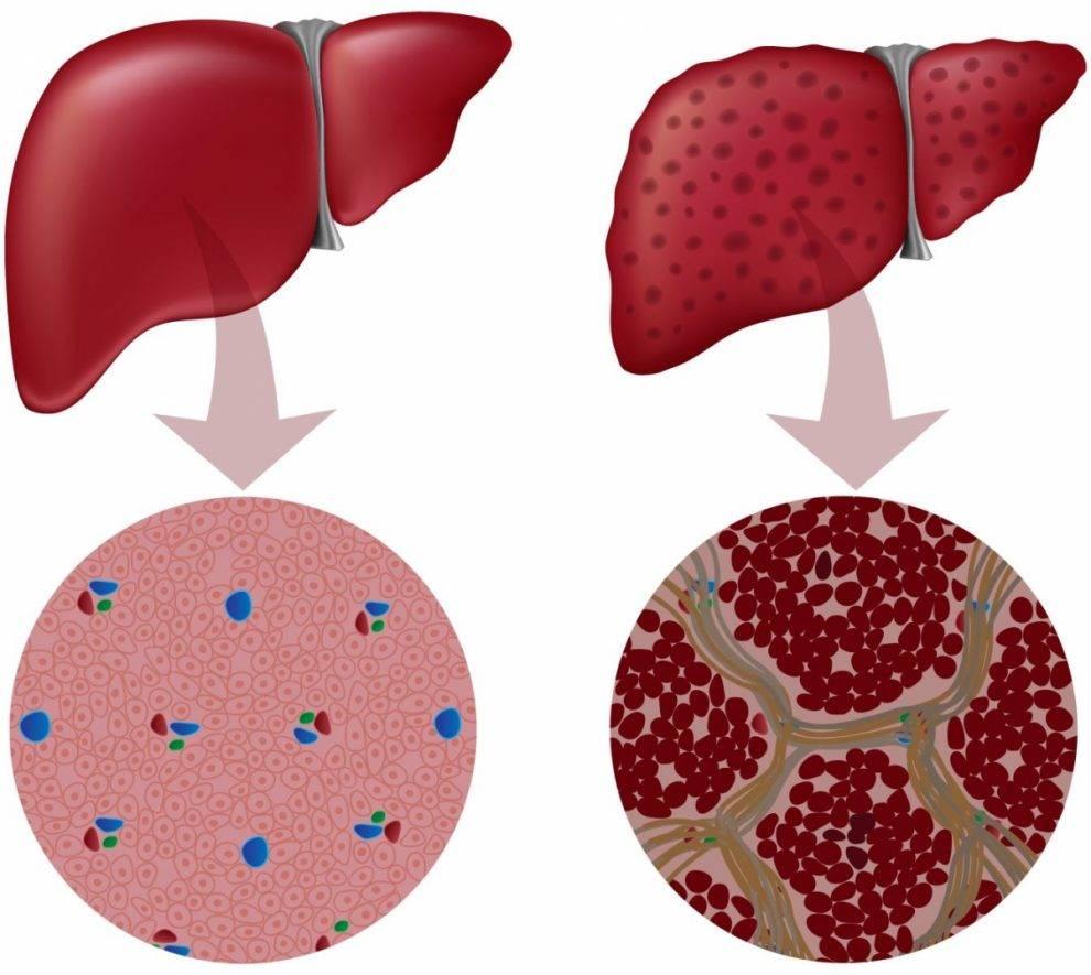Неспецифический реактивный гепатит: симптомы, причины, лечение и прогноз жизни