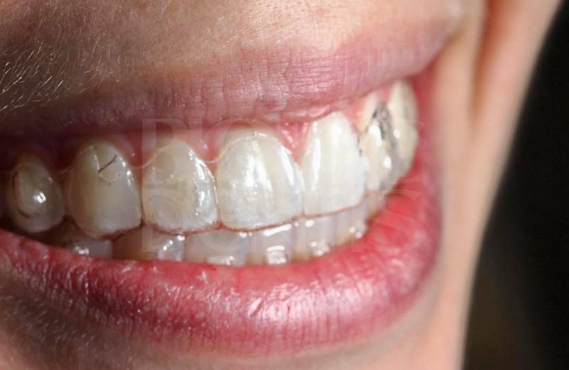 Элайнеры для выравнивания зубов star smile - стар смайл