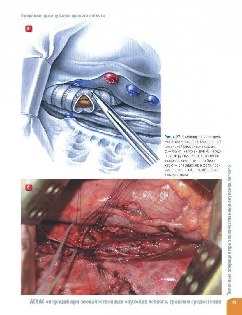 Рак трахеи - симптомы болезни, профилактика и лечение рака трахеи, причины заболевания и его диагностика на eurolab