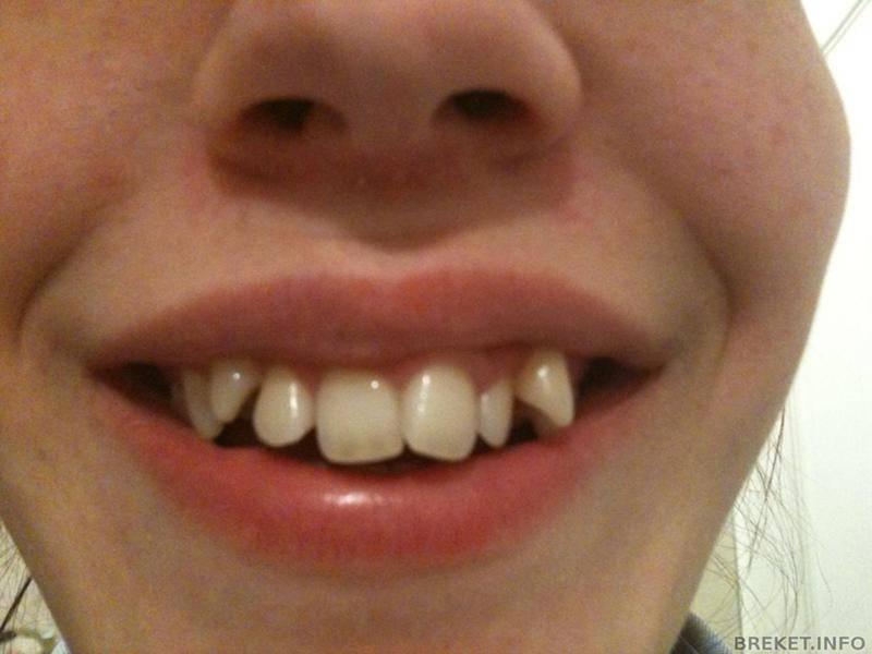 Кривые зубы: причины проблемы и основные способы исправления