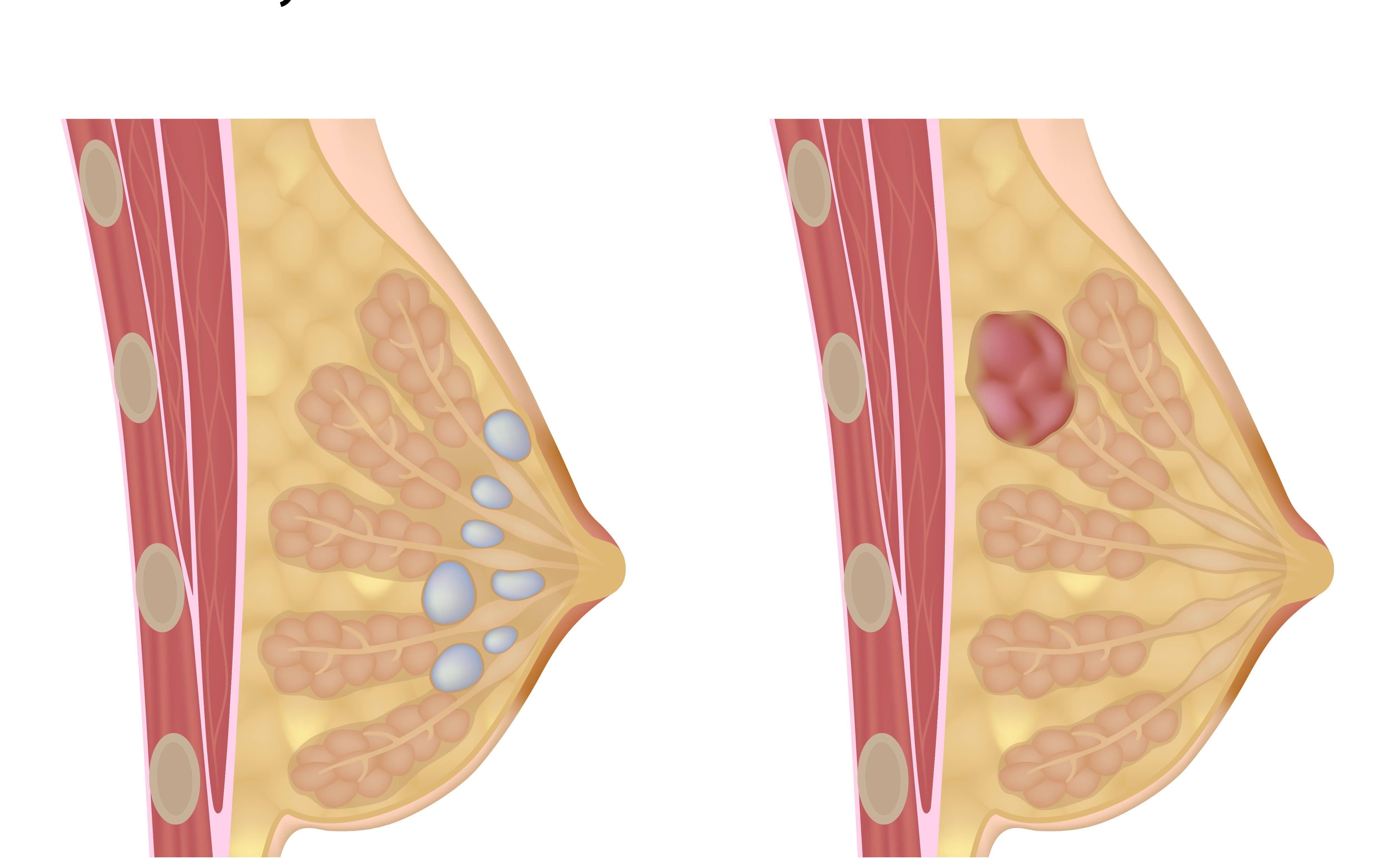 фиброаденома молочной железы во время беременности