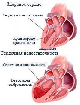 как ангина влияет на сердце