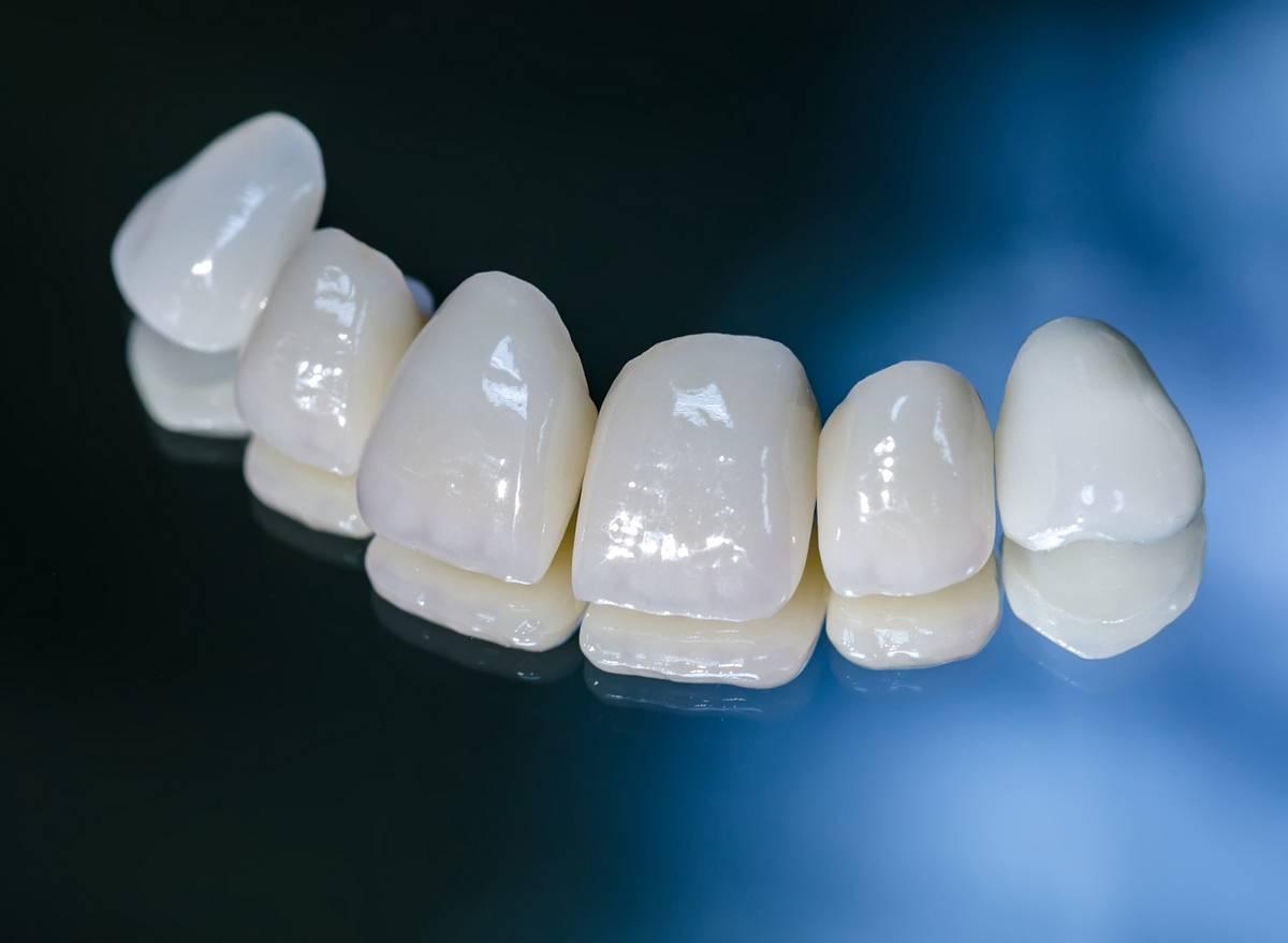 Керамические зубы, особенности керамических коронок и их преимущества