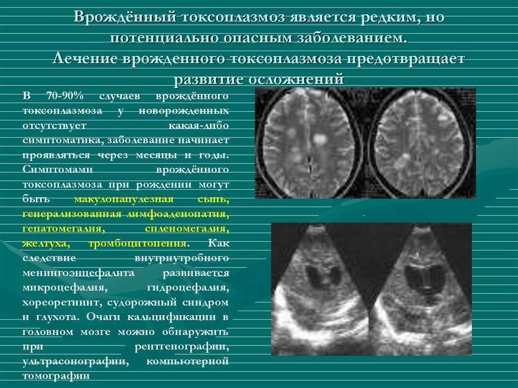 Токсоплазмоз во время беременности: что должна знать о нем каждая будущая мама?