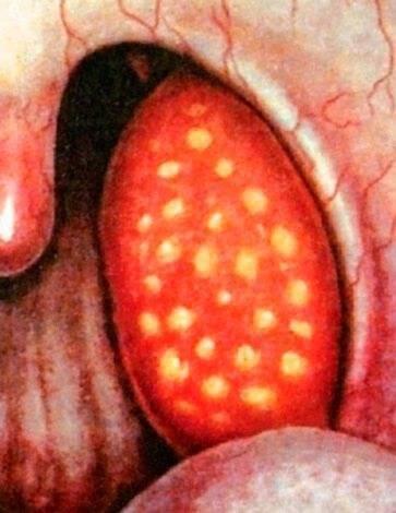 Какие антибиотики принимать при ангине взрослому и как лечить недуг?