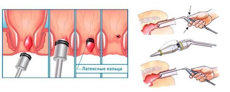 После лигирования геморроидальных узлов