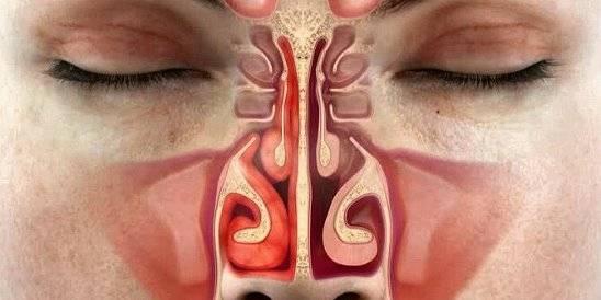 Заложен нос утром