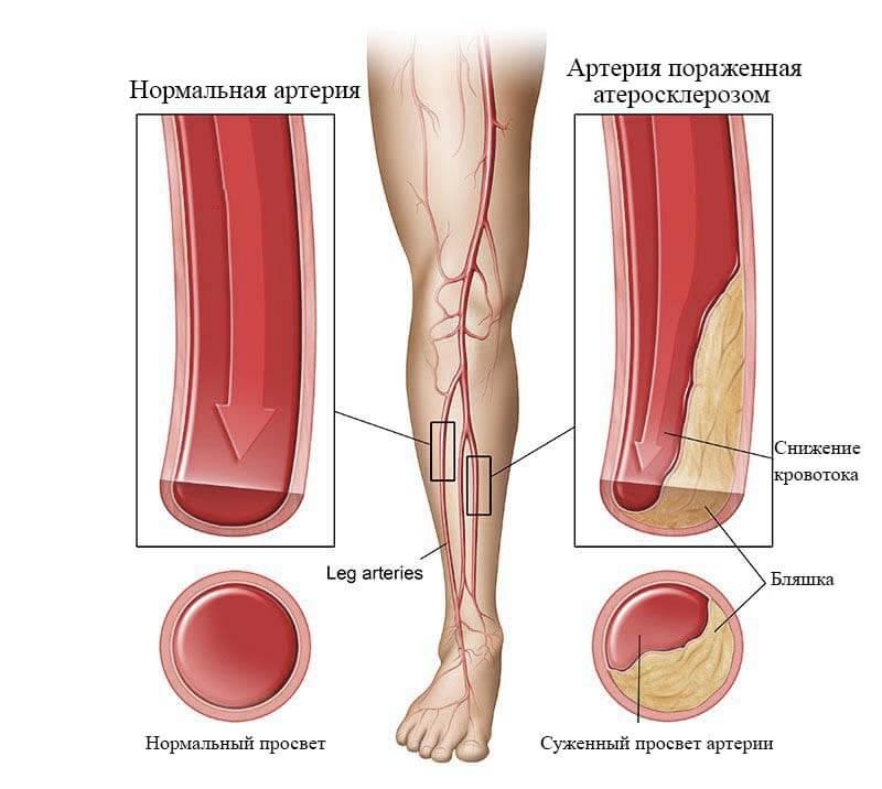 атеросклероз симптомы лечение пожилых
