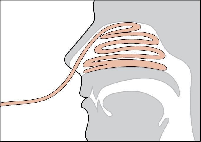 Лечение насморка лекарственными турундами