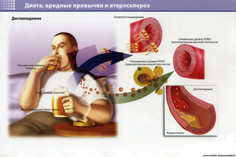 Атеросклероз— симптомы, причины и лечение атеросклероза
