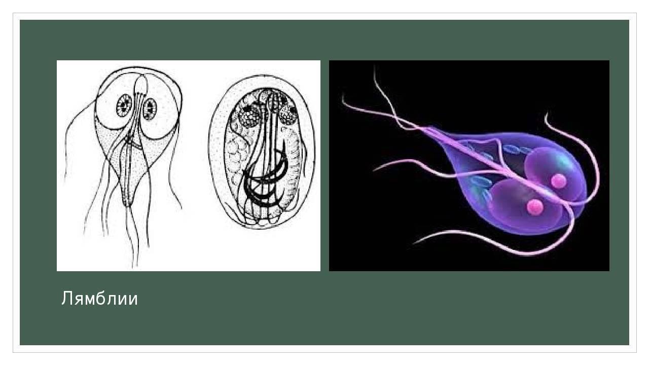 лямблиоз кишечника