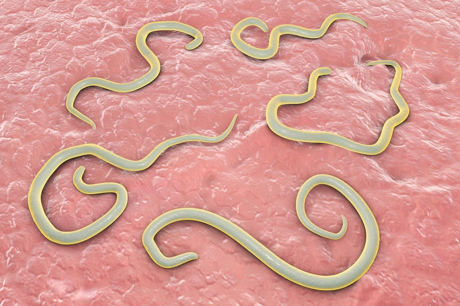 Виды паразитов в организме человека