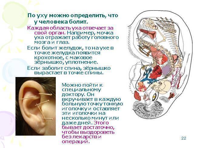 Иглоукалывание ушной раковины