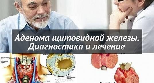 Аденома щитовидной железы: этиология, патогенез, терапия