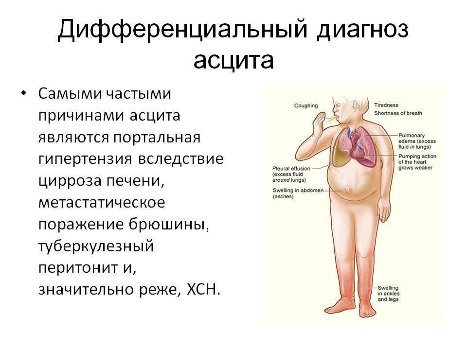 цирроз печени жидкость в брюшной полости