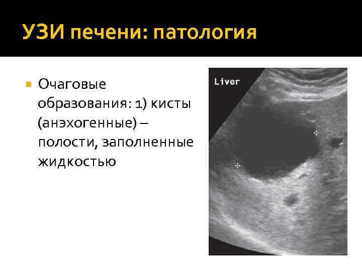 Основные признаки диффузно-фиброзных изменений печени