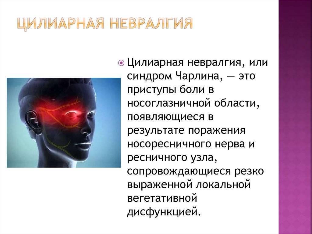 краниальная невралгия