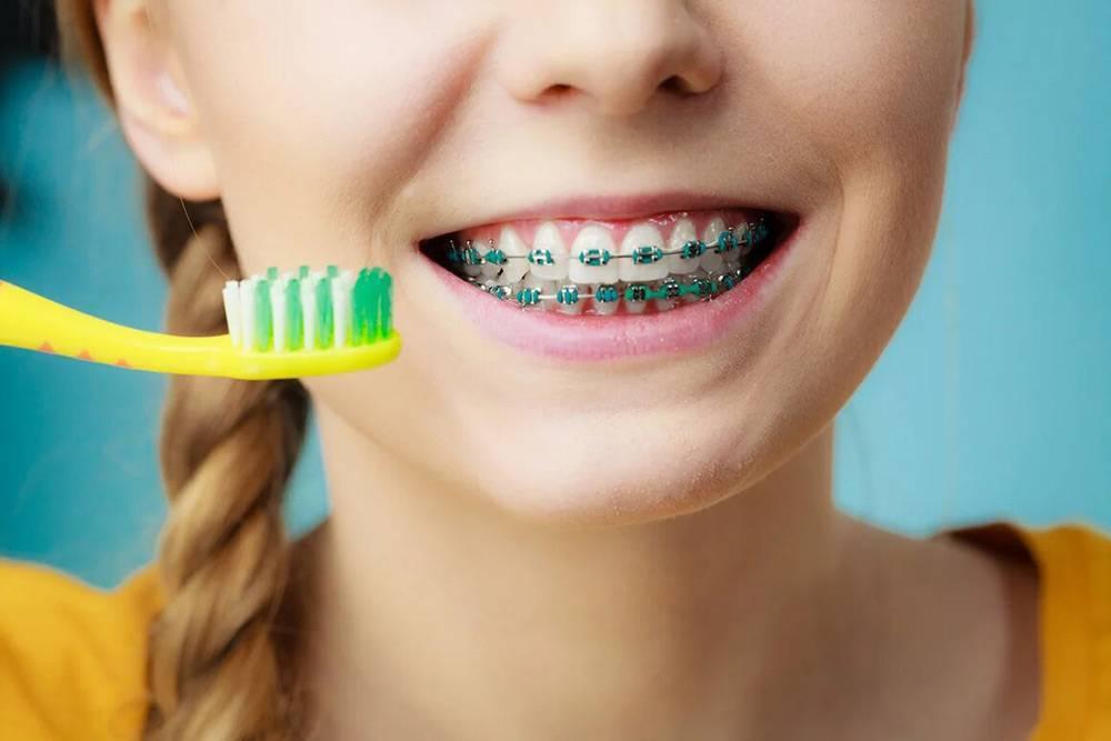 Особенности чистки зубов с брекетами