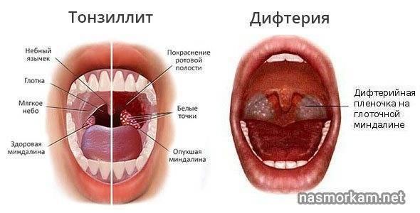 Маленькие пупырышки в горле