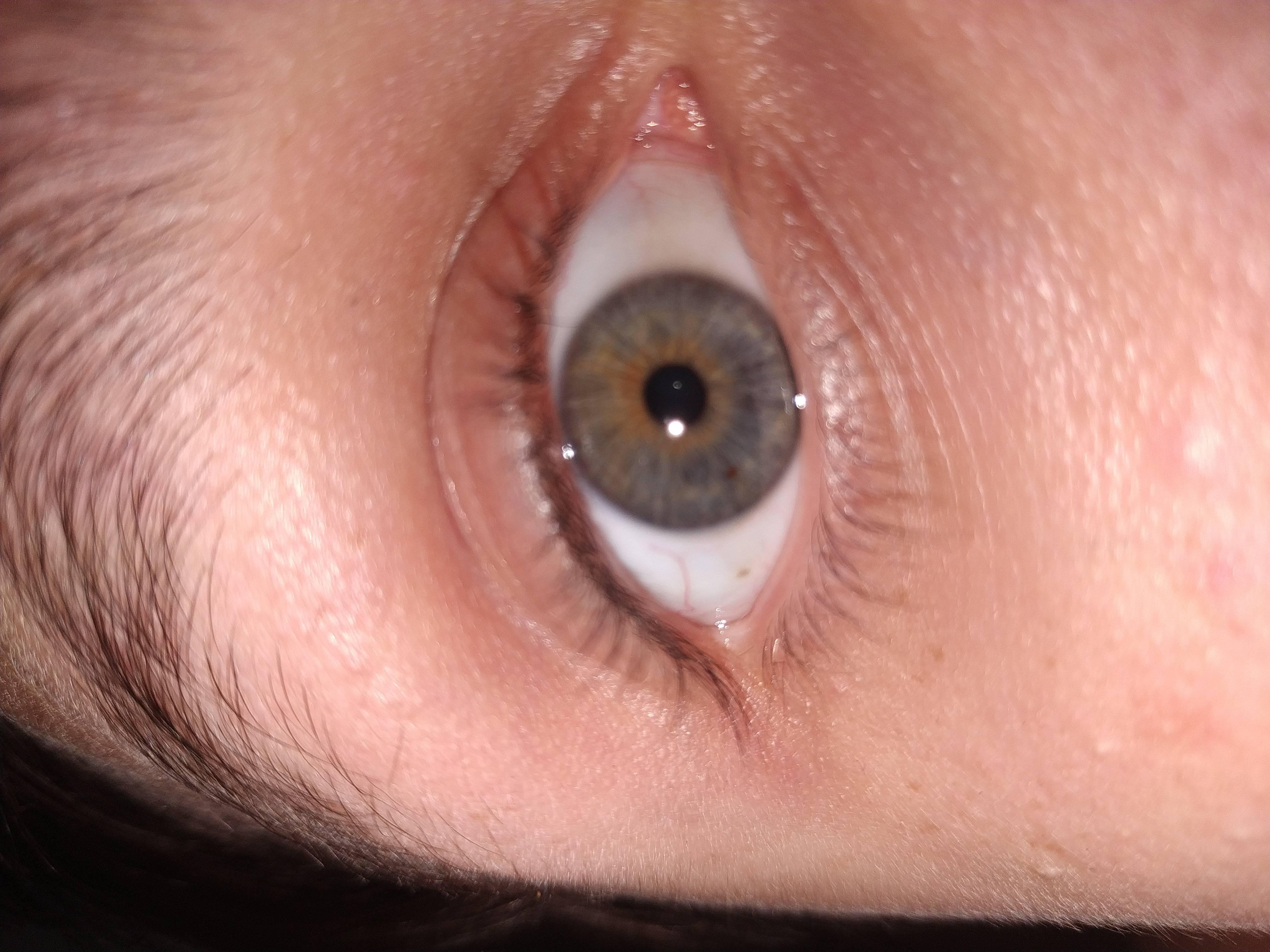 темная точка в глазу