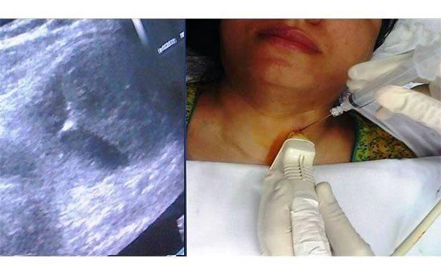 Пункция щитовидной железы. последствия. отзывы
