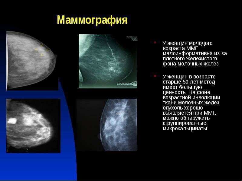 Со скольки лет маммография