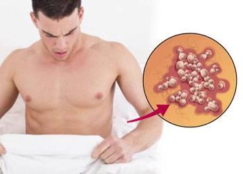 Причины развития генетального герпеса у мужчин