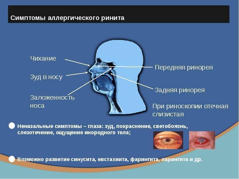 Аллергический ринит– причины, симптомы, лечение